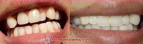 điều trị răng cửa mọc lệch không cần nhổ răng -2