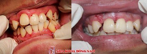 điều trị răng cửa mọc lệch không cần nhổ răng -4