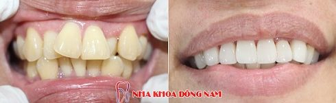 điều trị răng cửa mọc lệch không cần nhổ răng -5