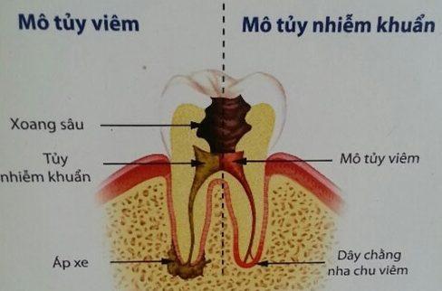 điều trị răng chết tủy như thế nào 2