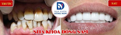 bọc răng sứ ngăn ê buốt răng