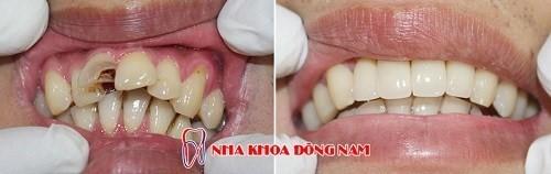 chữa tủy bọc răng sứ