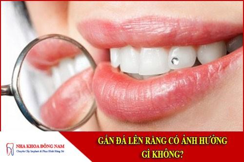 gắn đá lên răng có ảnh hưởng gì không