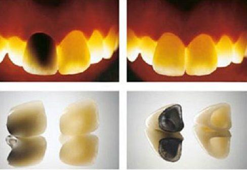 hướng dẫn phân biệt các loại răng sứ 2