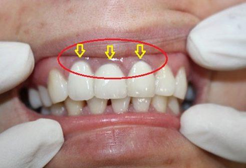 hướng dẫn phân biệt các loại răng sứ 3
