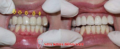 hướng dẫn phân biệt các loại răng sứ 4