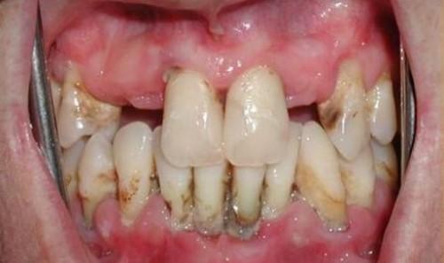 nguyên nhân khuyết cổ chân răng