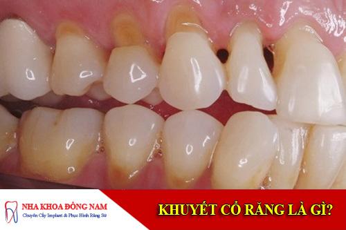 khuyết cổ răng là gì