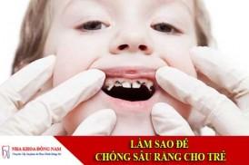 làm sao để chống sâu răng cho trẻ