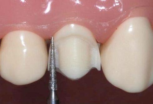 mài răng bọc sứ có nguy hiểm không 2