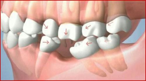 Mất răng có tác hại lớn không 1
