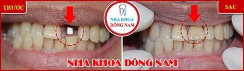 Mất răng có tác hại lớn không 11