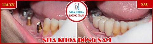 Mất răng có tác hại lớn không 5