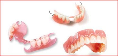 Mất răng có tác hại lớn không