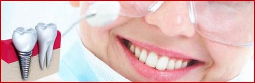 Mất răng có tác hại lớn không 9