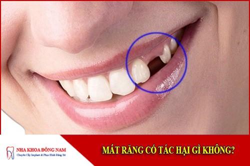mất răng có tác hại gì không