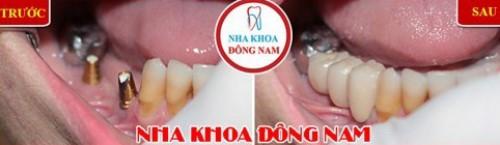 cấy 2 trụ implant phục hồi 3 răng mất