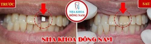 cấy implant 1 răng cửa
