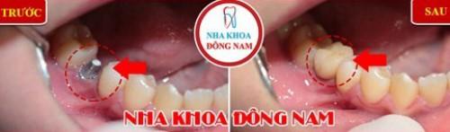 Cấy Implant cho răng hàm số 5