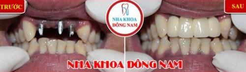Cấy 3 trụ Implant phục hồi 4 răng cửa