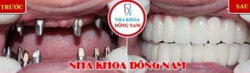 Trồng răng Implant cho cả 2 hàm
