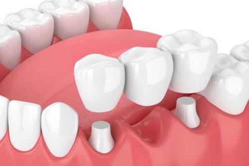 mô phỏng cầu răng sứ