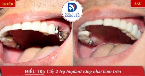 trồng 3 răng hàm bằng implant