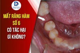 Mất răng có tác hại gì không?