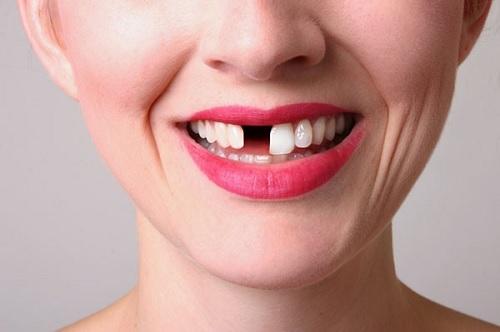 mơ thấy răng bị gãy hoặc rụng 2