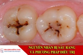 nguyên nhân bị sâu răng và phương pháp điều trị
