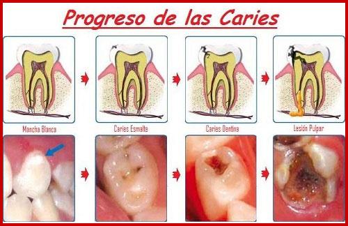 diễn biến của sâu răng