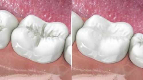 điều trị sâu răng nhẹ