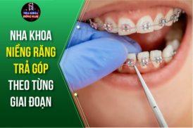 nha khoa niềng răng trả góp theo từng giai đoạn