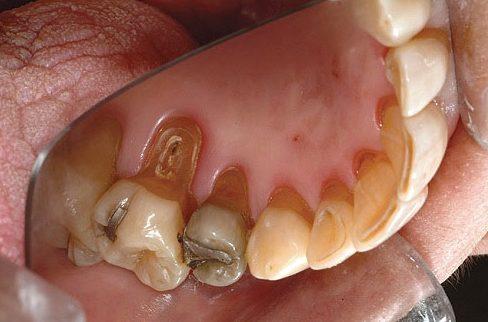 nhận biết 5 bệnh tiềm ẩn thông qua răng miệng 10