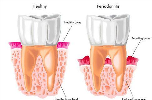 nhận biết 5 bệnh tiềm ẩn thông qua răng miệng