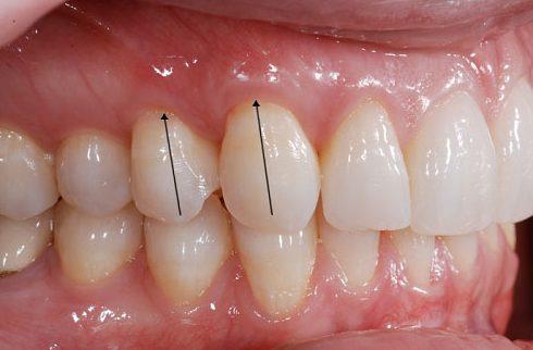 nhận biết 5 bệnh tiềm ẩn thông qua răng miệng 6