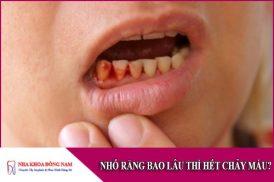 nhổ răng bao lâu thì hết chảy máu