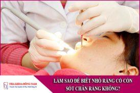 làm sao để biết nhổ răng có còn sót chân răng không