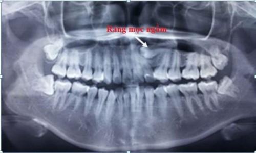 nhổ răng có làm đứt dây thần kinh không 1
