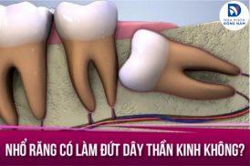 nhổ răng có làm đứt dây thần kinh không