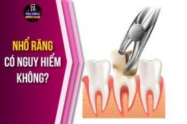 nhổ răng có nguy hiểm không
