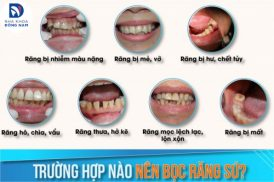 Trường hợp nào nên Bọc Răng Sứ?
