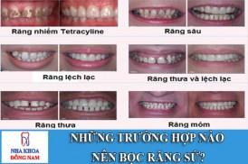 những trường hợp nào nên bọc răng sứ