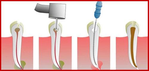 vấn đề thường gặp khi trị sâu răng