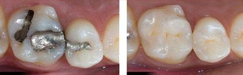vấn đề thường gặp khi sâu răng