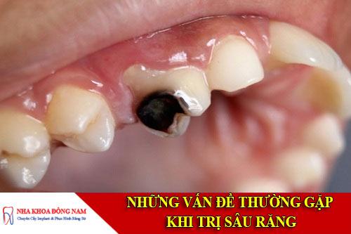 Những vấn đề thường gặp khi sâu răng