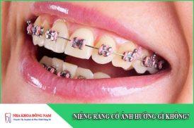 niềng răng có ảnh hưởng gì không