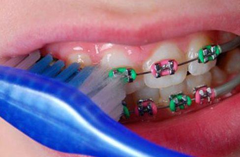 niềng răng có ảnh hưởng gì không 2