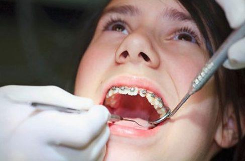 niềng răng có ảnh hưởng gì không 3
