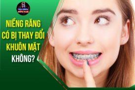 niềng răng có bị thay đổi khuôn mặt không